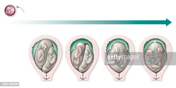 Illustration of various types of uniovular gemellary pregnancies true twins these pregnancies result from a single egg and a single sperm the...