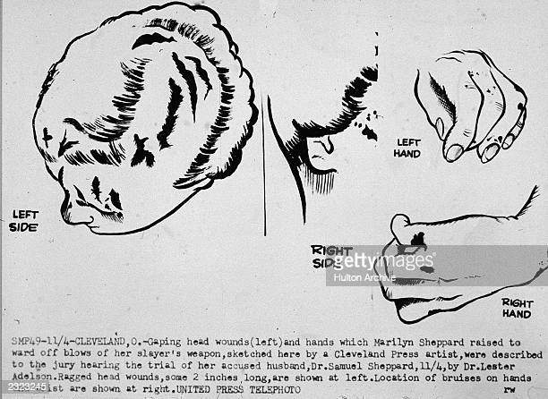 Illustrations of the fatal headwounds and bruised hands sustained by Marilyn Sheppard as described to the jury during the murder trial of her husband...
