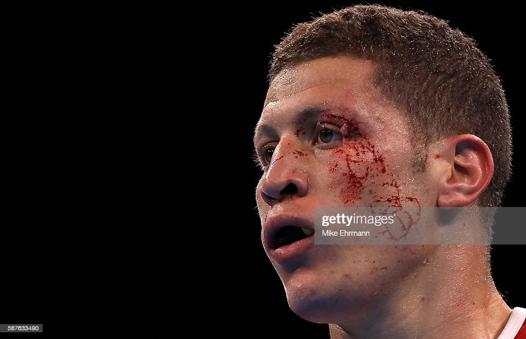Ilyas Abbadi of Algeria recieves a cut against Mpi Anauel Ngamissengue of the Congo in their Mens Middleweight 75kg bout on Day 4 of the Rio 2016...