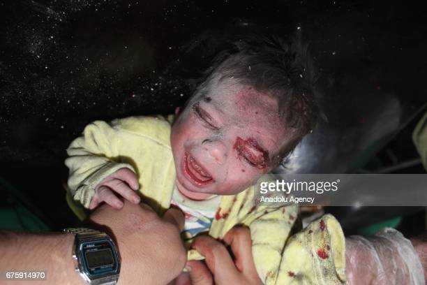 Image contains graphic content] A wounded Syrian baby cries waiting to receive medical treatment at sahra hospital after Assad Regime's airstrike...