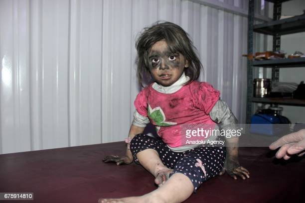 Image contains graphic content] A wounded Syrian kid waits to receive medical treatment at sahra hospital after Assad Regime's airstrike over Arbin...