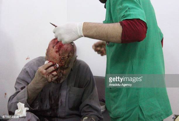 Image contains graphic content] A wounded Syrian man receives medical treatment at sahra hospital after Assad Regime's airstrike over Arbin town of...