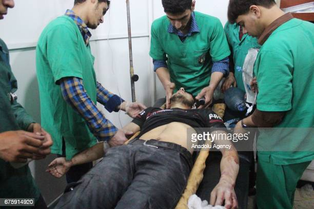 Image contains graphic content] A wounded Syrian receives medical treatment at sahra hospital after Assad Regime's airstrike over Arbin town of...