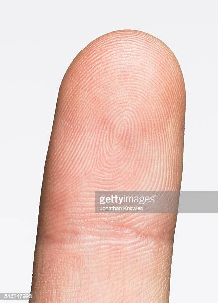 Image of a finger with visible lines