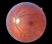 Image of a Human Retina