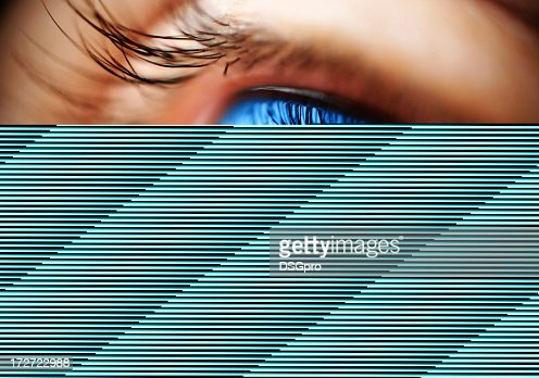Image of an eye failing to load completely