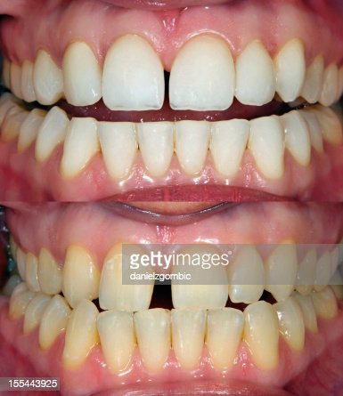 Image of straight white teeth and crooked yellow teeth