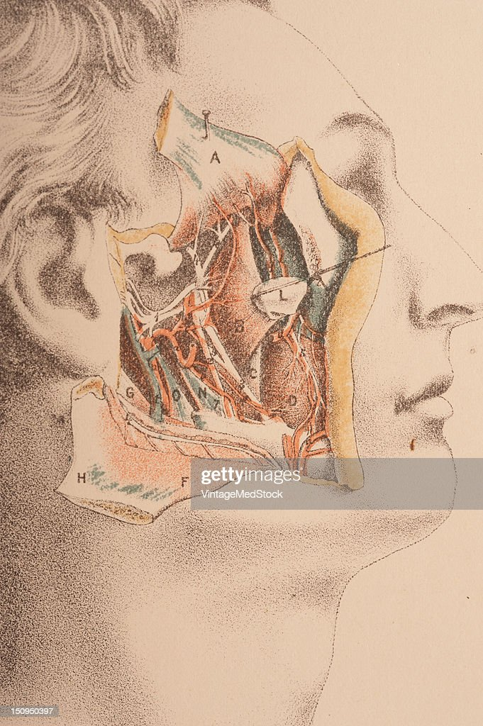 Image shows deep dissection of the pterygoid region showing the third trunk of the fifth cranial nerver and the deep branches of the internal...
