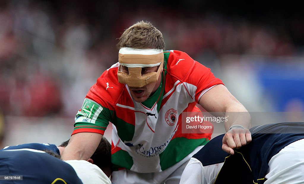 Imanol Harinordoquy of Biarritz wears a face protector during the Heineken Cup semi final match between Biarritz Olympique and Munster at Estadio...