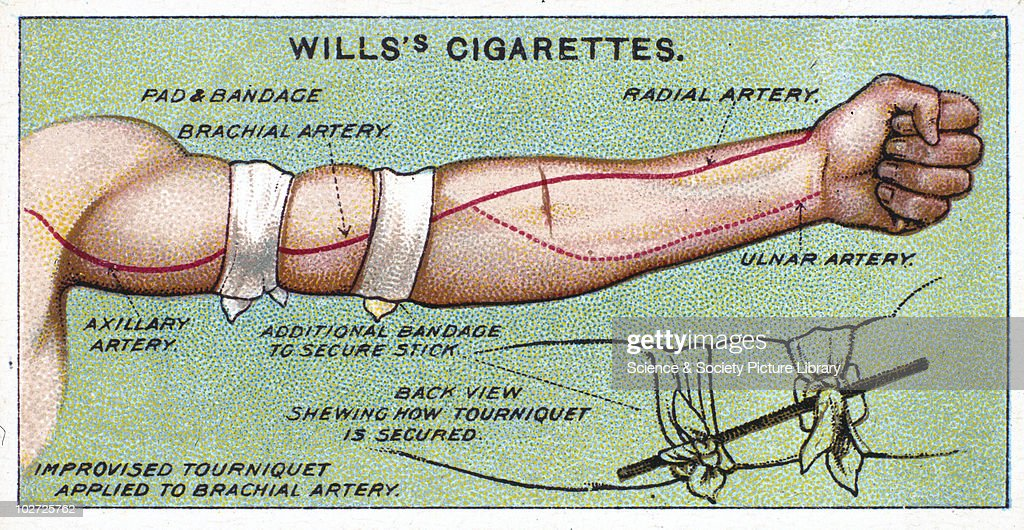 'Improvised tourniquet applied to Brachial artery'. Wills' cigarette card, 1913. One of a series of 50 'First Aid' cigarette cards issued by W.D. & H.O Wills. To arrest haemorrhage from artery below the middle of arm by a tourniquet, raise limb from the side. Make hard pad of a handkerchief and apply it to brachial artery. Carry a bandage round the arm and tie ends on the outer side of the limb. Between the halves of the knot insert a pencil, key, or stick, and twist until haemorrhage ceases. Secure pencil in position by another bandage above or below tourniquet.