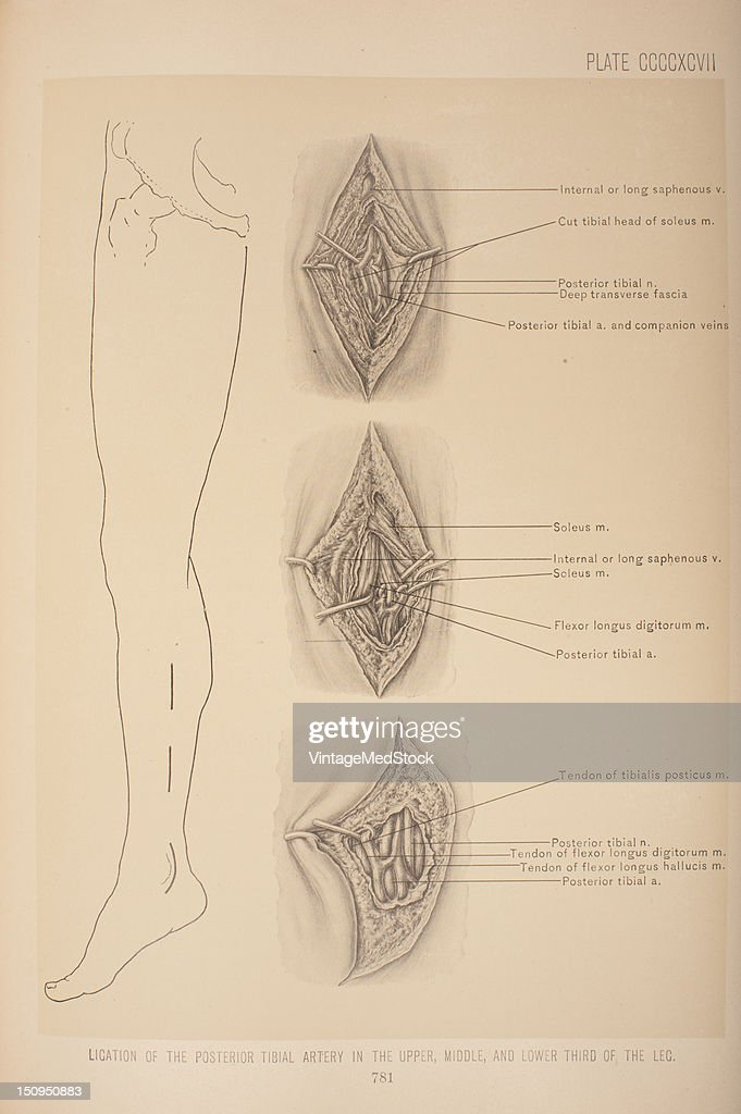 In ligating the posterior tibial artery in its upper third the leg is flexed and laid on its outer side 1903 From 'Surgical Anatomy The Treatise of...