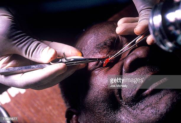 In the first step of an operation to prevent further damage due to tracoma this patient's turnedunder eyelid is located in 1992 in Kongwa Tanzania...