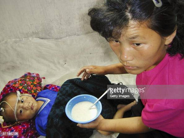 In this handout from the World Food Programme a malnourished North Korean boy 3 yearold Jong Song Chol is fed a vitamin and mineralenriched porridge...