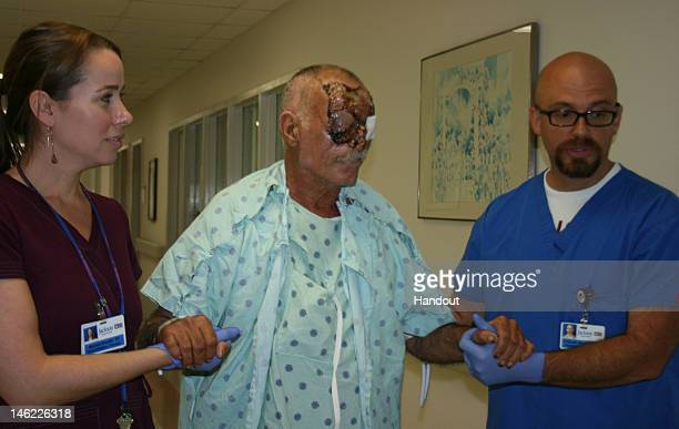 In this handout image provided by Jackson Memorial Hospital cannibal attack victim Ronald Poppo shows the extent of his injuries for the first time...