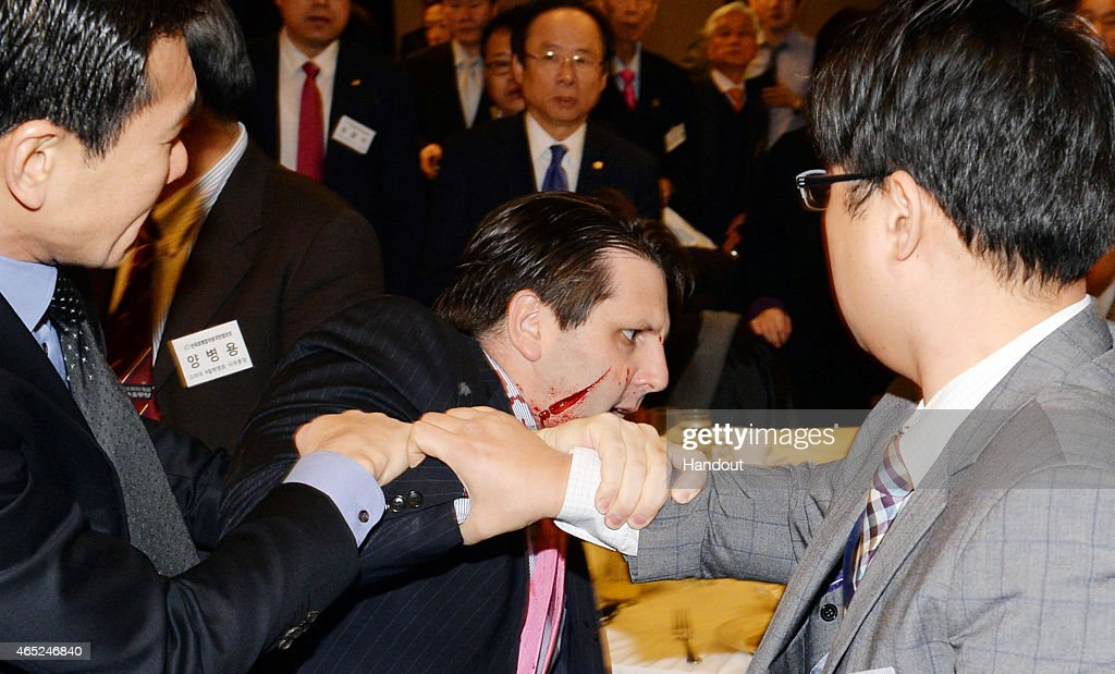 In this handout image provided by Munhwa Ilbo newspaper, U.S. Ambassador to South Korea <a gi-track='captionPersonalityLinkClicked' href=/galleries/search?phrase=Mark+Lippert&family=editorial&specificpeople=5797334 ng-click='$event.stopPropagation()'>Mark Lippert</a> is seen right after getting attacked on March 5, 2015 in Seoul, South Korea. Ambassador Lippert was attacked with a razor blade by a man at a venue where he was going to give a lecture. The attacker who reportedly identified himself as a representative for a watchdog organization of the disputed island Dokdo/Takeshima, was arrested immediately on site.