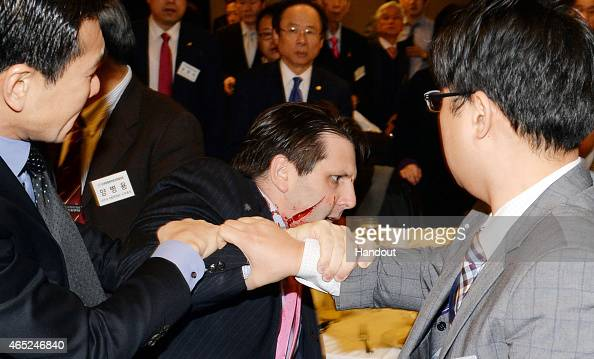 In this handout image provided by Munhwa Ilbo newspaper US Ambassador to South Korea Mark Lippert is seen right after getting attacked on March 5...