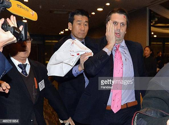 In this handout image provided by The Asia Economy Daily newspaper US Ambassador to South Korea Mark Lippert is seen after getting attacked on March...
