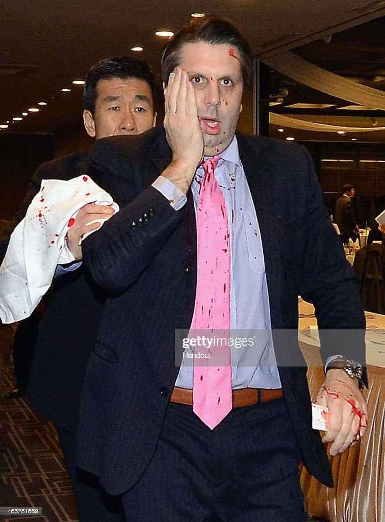 In this handout image provided by The Asia Economy Daily newspaper, U.S. Ambassador to South Korea <a gi-track='captionPersonalityLinkClicked' href=/galleries/search?phrase=Mark+Lippert&family=editorial&specificpeople=5797334 ng-click='$event.stopPropagation()'>Mark Lippert</a> is seen after getting attacked on March 5, 2015 in Seoul, South Korea. Ambassador Lippert was attacked with a razor blade by a man at a venue where he was going to give a lecture. The attacker who reportedly identified himself as a representative for a watchdog organization of the disputed island Dokdo/Takeshima, was arrested immediately on site.