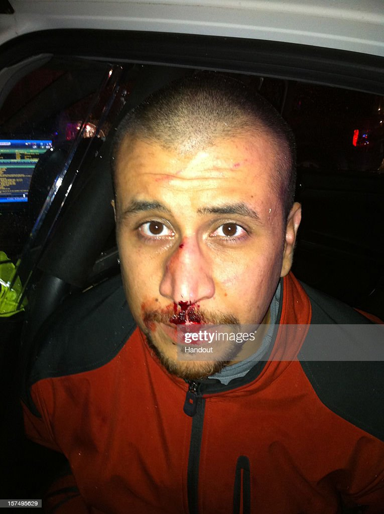 In this handout image released online December 3, 2012 by Zimmerman's defense team, as part of the state's ninth supplemental discovery, George Zimmerman is photographed following a shooting incident involving Trayvon Martin, February 26, 2012 in Sanford, Florida. Zimmerman is currently on trial for second-degree murder in the death of 17-year-old Martin.