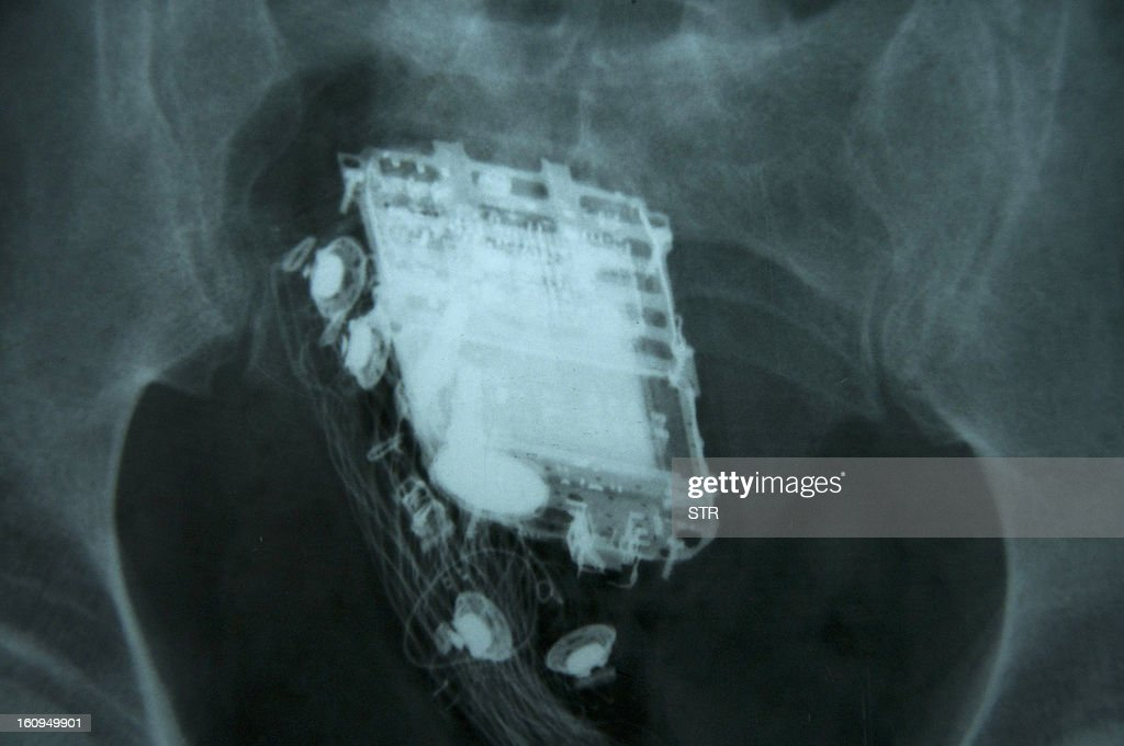 In this photograph received by AFP on February 8, 2013, a mobile phone and a hands free kit are seen in the rectum on an X-ray of a 58 year old Sri Lankan prisoner. A Sri Lankan prisoner who tried to hide his mobile phone during a search of his cell was caught out when guards heard ring tones from his rear-end, a hospital official said. The 58-year-old convict had to be admitted to the national hospital in Colombo where doctors later retrieved the handset from his rectum.