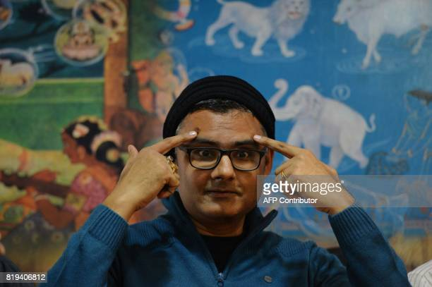 In this photograph taken on July 18 Abhishek Prasad points towards the surgical scars while addressing a press conference held at the Mahaveer Jain...