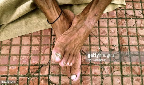 In this photograph taken on July 30 2017 Indian runner Samir Singh rests his feet during a run in Mumbai Tormented by blisters illness and injuries...