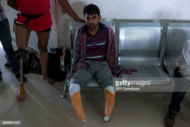 In this photograph taken on June 13 22yearold electrician Vishnu Kumar who lost his legs and hands in an accident waits for his rubberbased...
