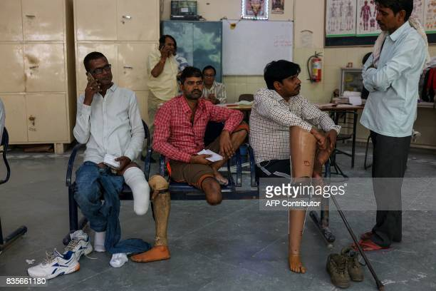 In this photograph taken on June 13 50yearold Rajkumar Saini who suffered a road accident in 2004 gets his fourth prosthetic leg fixed at the Bhagwan...