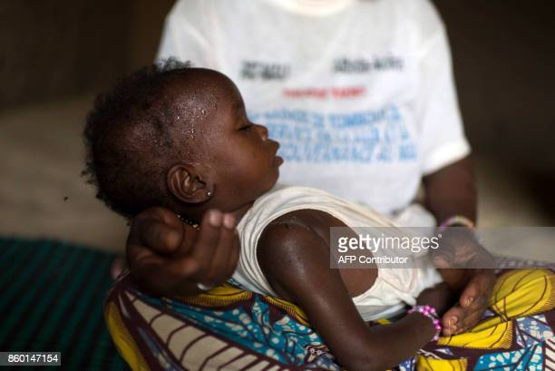 In this photograph taken on October 5 Fadimata Alassan 25 years sits with her 22 month old child Fati Diko who is suffering from acute malnutrition...