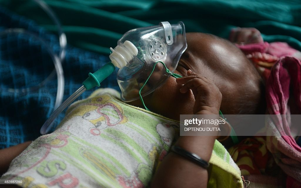 India child Bobiul Ahmed, who is three months old and who is suffering from Japanese encephalitis, lies in a ward while being treated at the North Bengal Medical College Hospital (NBMCH) on the outskirts of Siliguri on July 23, 2014. Outbreaks of encephalitis in India have killed more than 150 people, with health officials on alert fearing the death toll could rise further, state government directors said. Some 102 people have died in West Bengal state from the mosquito-borne virus which affects mainly malnourished children and can cause brain damage and seizures, said medical education director Sushanta Banerjee. Many of the deaths have occurred since the onset of the monsoon season in June when mosquitoes breed in large numbers. AFP PHOTO/ Diptendu DUTTA