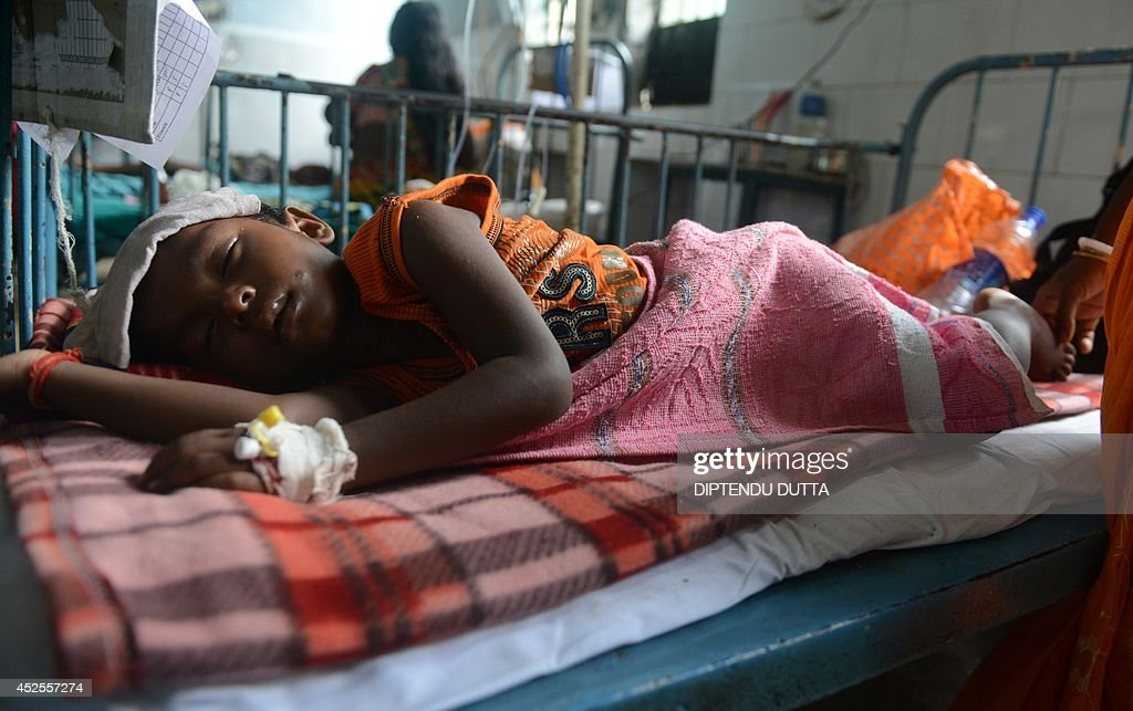India child Nikhil Mahato lies in a ward while being treated for Japanese encephalitis at the North Bengal Medical College Hospital (NBMCH) on the outskirts of Siliguri on July 23, 2014. Outbreaks of encephalitis in India have killed more than 150 people, with health officials on alert fearing the death toll could rise further, state government directors said. Some 102 people have died in West Bengal state from the mosquito-borne virus which affects mainly malnourished children and can cause brain damage and seizures, said medical education director Sushanta Banerjee. Many of the deaths have occurred since the onset of the monsoon season in June when mosquitoes breed in large numbers. AFP PHOTO/ Diptendu DUTTA