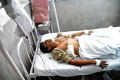 Indian Border Security Force soldier Pawan Kumar lies in a hospital bed in The Government Medical College Hospital in Jammu on August 11 after being...