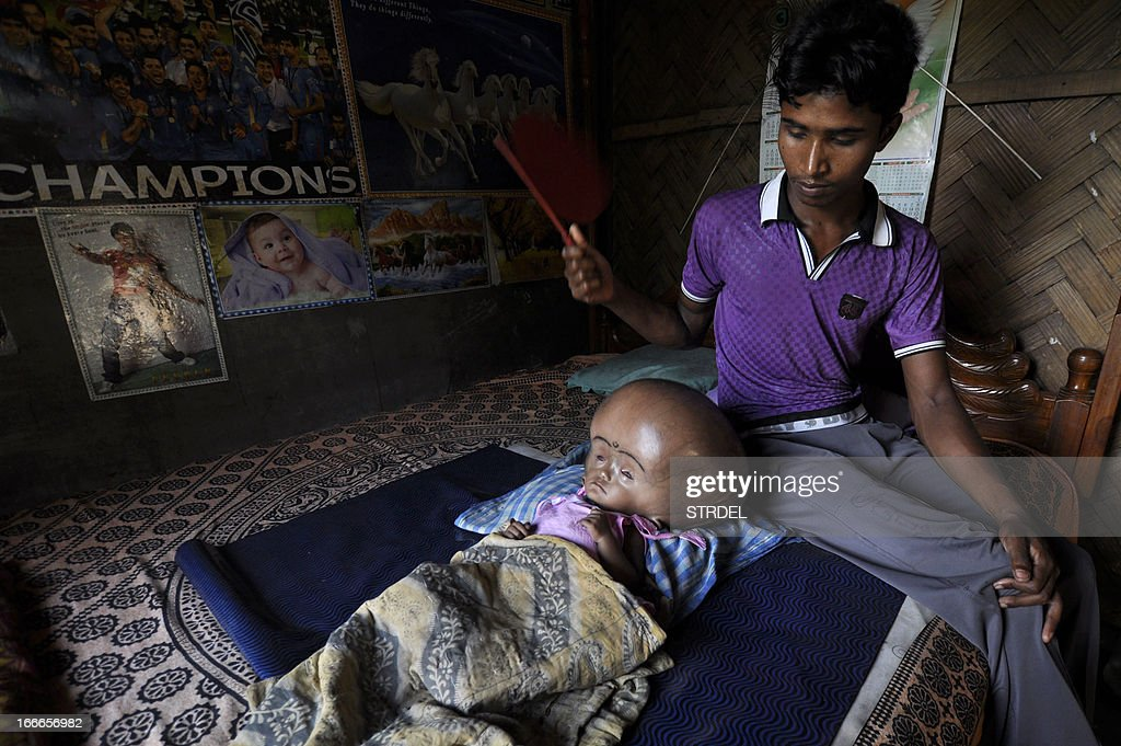 Indian labourer Abdul Rahman fans his eighteen month old daughter, Roona Begum, suffering from Hydrocephalus, a buildup of fluid inside the skull that leads to brain swelling, at their hut in Jirania village on the outskirts of Agartala, the capital of northeastern state of Tripura on April 15, 2013. A top private Indian hospital offered April 15 to examine an 18-month-old girl suffering from a rare but treatable illness that has caused her head to swell to more than double its normal size. AFP PHOTO/STR