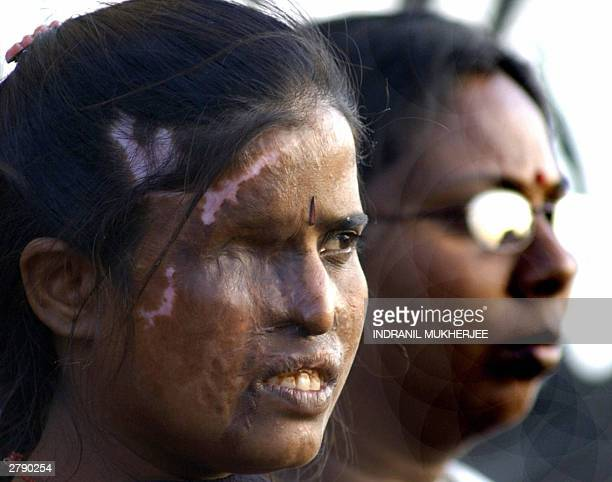 Indian woman Asha a victim of an acid throwing incident takes part in a peace rally in Bangalore 06 December 2003 on the occassion of the 11th...