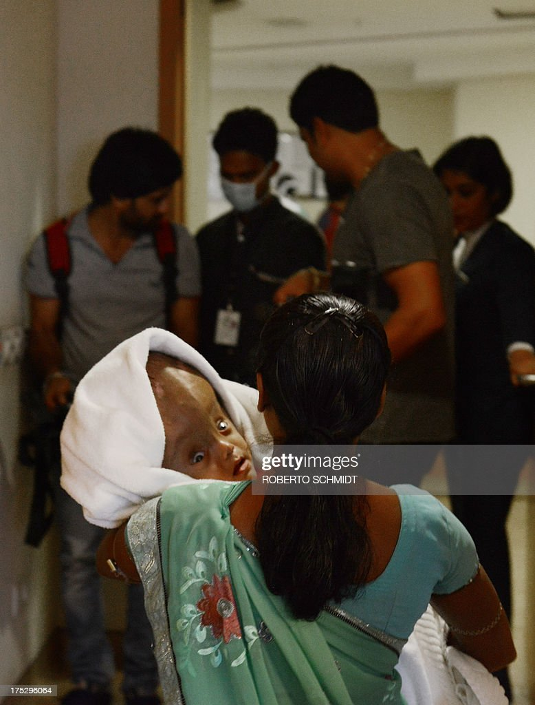Indian woman Fatema Khatun, carries her four-month-old daughter Roona from a hospital room in New Delhi on August 2, 2013, as they and her husband leave a hospital and head home to the north-eastern state of Tripura. Roona whose plight captured international sympathy, has battled through several life-saving surgical procedures which saw doctors at a hospital drain fluid from her head and dramatically reduce the size of her skull. Doctors have discharged a one-year-old Indian baby from hospital after nearly four months of treatment and surgeries to correct a rare disorder that caused her head to nearly double in size. AFP PHOTO/Roberto SCHMIDT