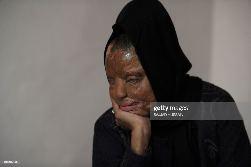 India-women-crime-entertainment,FEATURE by Rupam Jain Nair In a picture taken on December 5, 2012, Indian acid attack survivor Sonali Mukherjee poses at her home in New Delhi. When Sonali Mukherjee rejected the advances of three of her fellow students, they responded by melting her face with acid. But rather than hide herself away, the 27-year-old applied to appear on India's most watched TV quiz show -- and walked away as a millionaire. AFP PHOTO/SAJJAD HUSSAIN
