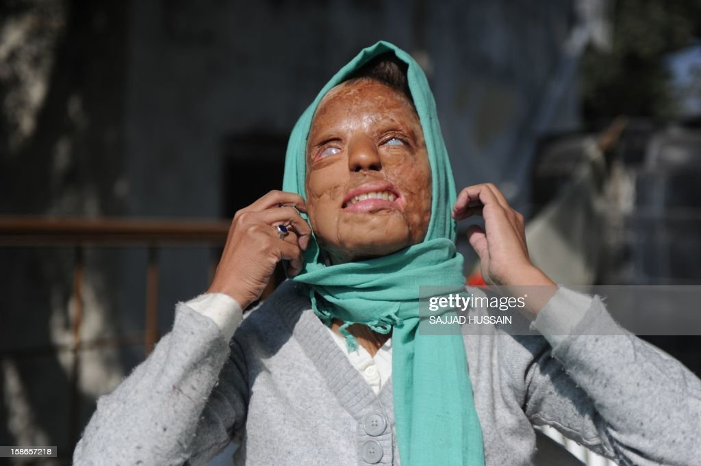 India-women-crime-entertainment,FEATURE by Rupam Jain Nair In a picture taken on December 6, 2012, Indian acid attack survivor Sonali Mukherjee adjusts her headscarf in New Delhi. When Sonali Mukherjee rejected the advances of three of her fellow students, they responded by melting her face with acid. But rather than hide herself away, the 27-year-old applied to appear on India's most watched TV quiz show -- and walked away as a millionaire. AFP PHOTO/SAJJAD HUSSAIN