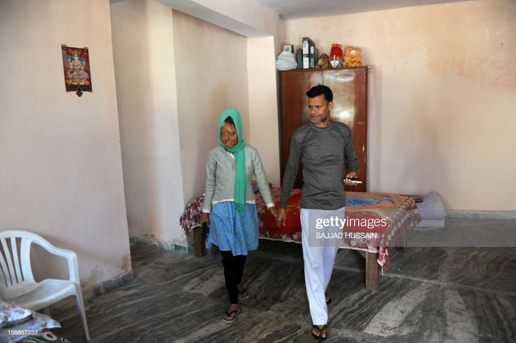 India-women-crime-entertainment,FEATURE by Rupam Jain Nair In a picture taken on December 5, 2012, Indian acid attack survivor Sonali Mukherjee (L) walks with her father Chandi Das Mukherjee at her home in New Delhi. When Sonali Mukherjee rejected the advances of three of her fellow students, they responded by melting her face with acid. But rather than hide herself away, the 27-year-old applied to appear on India's most watched TV quiz show -- and walked away as a millionaire.