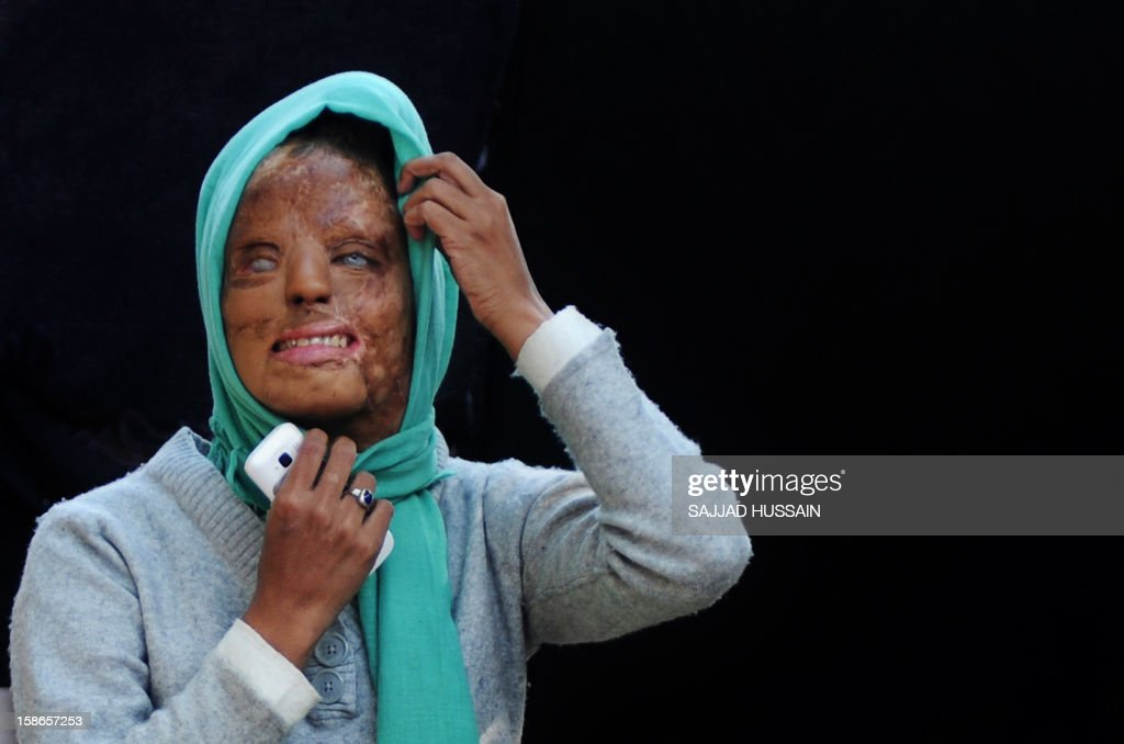 India-women-crime-entertainment,FEATURE by Rupam Jain Nair In a picture taken on December 6, 2012, Indian acid attack survivor Sonali Mukherjee poses outside her temporary home in New Delhi. When Sonali Mukherjee rejected the advances of three of her fellow students, they responded by melting her face with acid. But rather than hide herself away, the 27-year-old applied to appear on India's most watched TV quiz show -- and walked away as a millionaire.