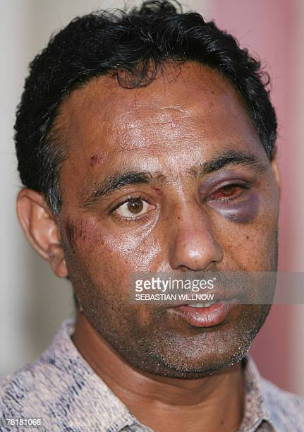 Injured Indian Kulvir Singh talks to the press 20 August 2007 in Muegeln near Leipzig eastern Germany Singh and seven other Indians were assaulted...