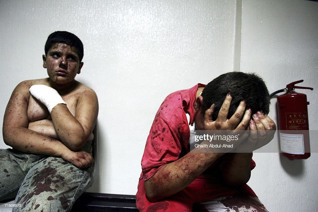 Injured Lebanese children wait for treatment in hospital after a rocket from an Israeli aircraft hit their van as they fled their village July 23, 2006 in Tyre, Lebanon. According to reports, at least 130 people have died in Tyre since the begining of the airstrikes.