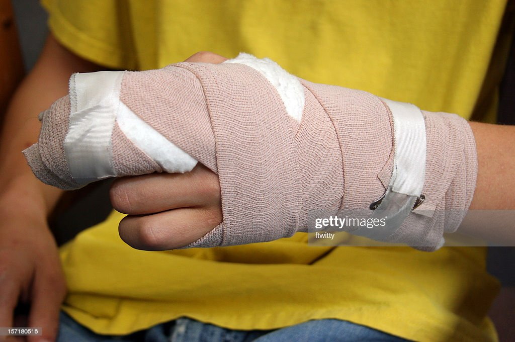 Injured person shows off wrist cast : Stock Photo