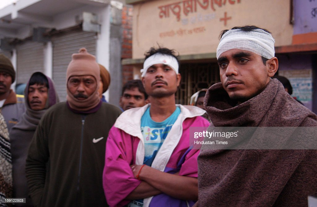 Injured TMC workers are in front of their Bamanghata Party Office after the clash with CPI(M) on on January 8, 2013 in South 24 Parganas, India. A large number of vehicles were reportedly torched while more than dozen of cadres from both parties were injured in clash using firearms and stones.Reportedly convoy of Marxist leader Abdur Rezzak Mollah was attacked by TMC former MLA Arabul Islam leading to violent clash between cadres of two parties.