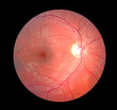 Retinal Photograph inside the eye.