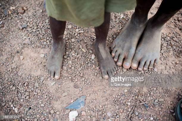Innocente piedi