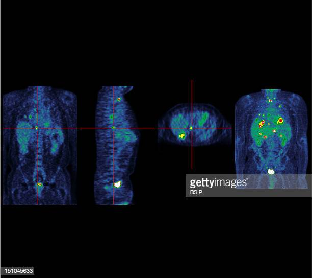 Institute Of Nuclear Medicine University Hospital Of Lille France Pet Scan Positron Emission Tomography Colorectal Carcinoma Several Liver And Lung...
