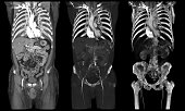 Human internal organs on whole body computed tomography