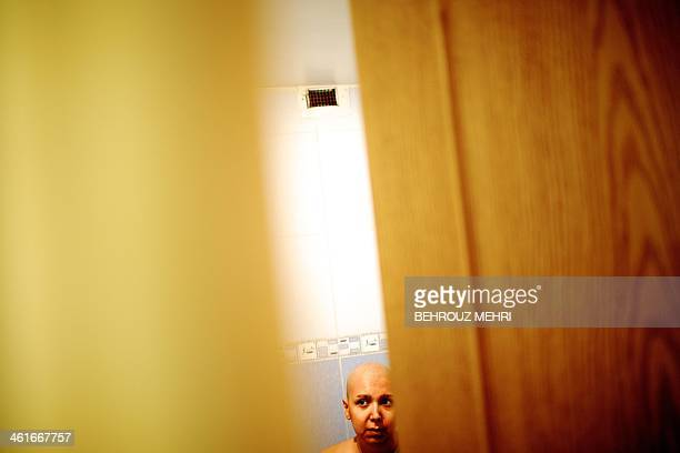 Iranian breast cancer patient Farvah tries to look at her breast at her parents' house in Tehran on October 18 2013 days after her lumpectomy surgery...
