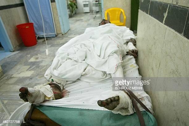 Iranian burn victim Ahmad YousefAbadi sleeps in his bed at Khatam alAnbia hospital in the southeastern border city of Zahedan 25 June 2004 An Iranian...