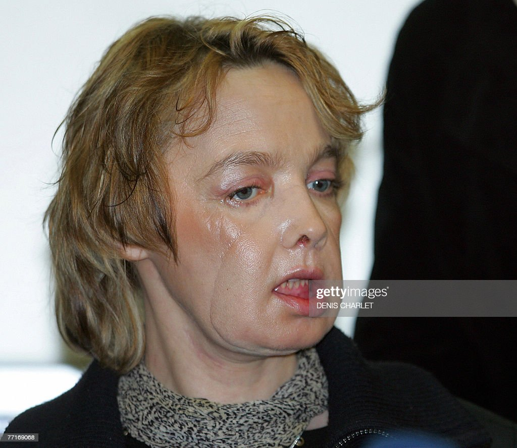 2005 and surgeons in France performed the world's first partial face transplant on Isabelle Dinoire who was mauled by a dog.